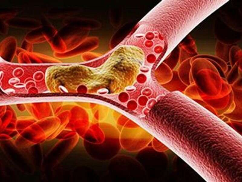 Endovascular therapy studied for stroke due to basilar-artery occlusion